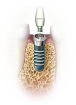 dental tooth implant
