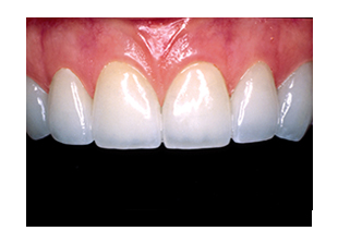 porcelain veneers anchorage
